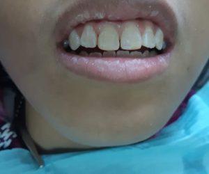 After - penambalan estetik gigi fraktur depan - drg Lukas