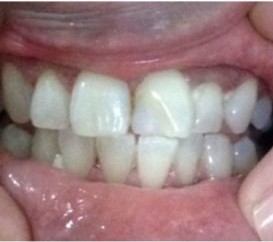 Contoh kasus Pemutihan Gigi after - drg Hanny Japarto