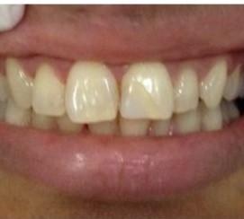 Contoh kasus Pemutihan Gigi before - drg Hanny Japarto