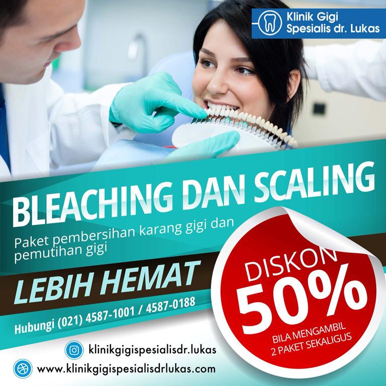 Diskon 50 persen Bleaching & Scaling Gigi - Klinik Gigi Spesialis dr Lukas