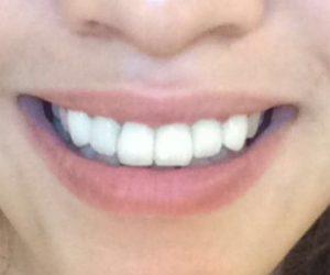 Foto After Contoh Kasus Veneer Gigi Merubah Senyum Mu Menjadi Indah - drg Lukas MHA FISID