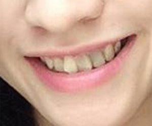 Foto Before Contoh Kasus Veneer Gigi Merubah Senyum Mu Menjadi Indah - drg Lukas MHA FISID
