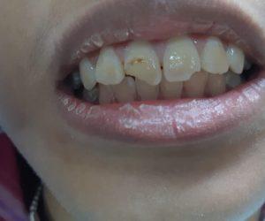before - penambalan estetik gigi fraktur depan - drg Lukas