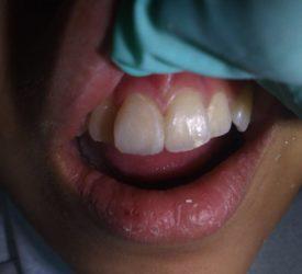 gigi-fraktur after