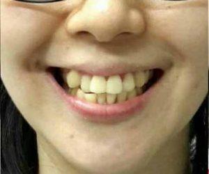 senyum indah sebelum perawatan Orthodonti - Klinik Gigi Spesialis dr Lukas