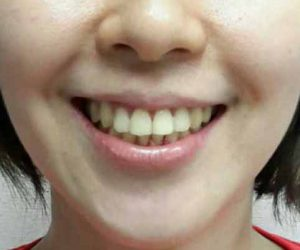 senyum indah sesudah perawatan Orthodonti - Klinik Gigi Spesialis dr Lukas